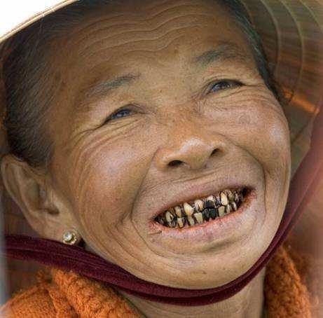 Если человек не чистит зубы фото